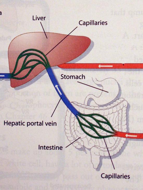 hepatic vein obstruction pictures